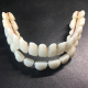 Dental Resin Artificial Dentition Synthetic Teeth Multi-Layer Acrylic Composite False Teeth Super Hard Polymer Denture
