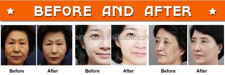 Best facial lifting and body slimming Lipohifu + HIFU machine 2 in 1 FU-18