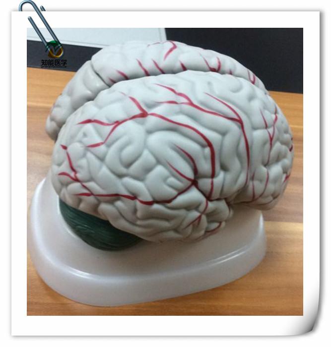 BIX-A1041 la ciencia médica humanos arteria del cerebro anatomía ...