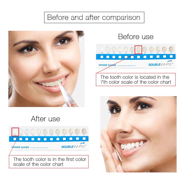 CAMPIONE GRATUITO PENNA su misura di Alta Qualità Teeth Whitening Pen, penna sbiancamento dei denti, sbiancamento dei denti gel