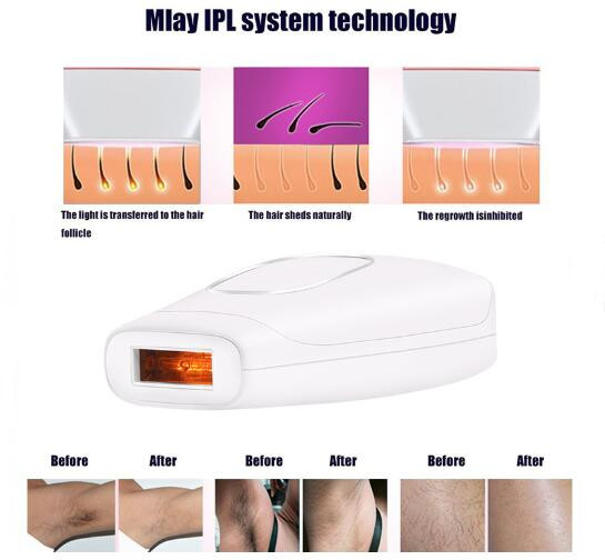 Home Permanent 400000 flashes IPL Epilator Hair Removal IPL  Hair Removal Machine Elight IPL Laser Hair Removal