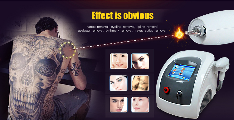 Good sale! nd yag q-switched laser price/laser rejuvi tattoo removal equipment