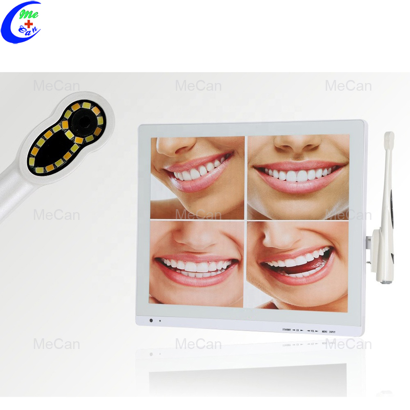 Dental Intraoral Camera