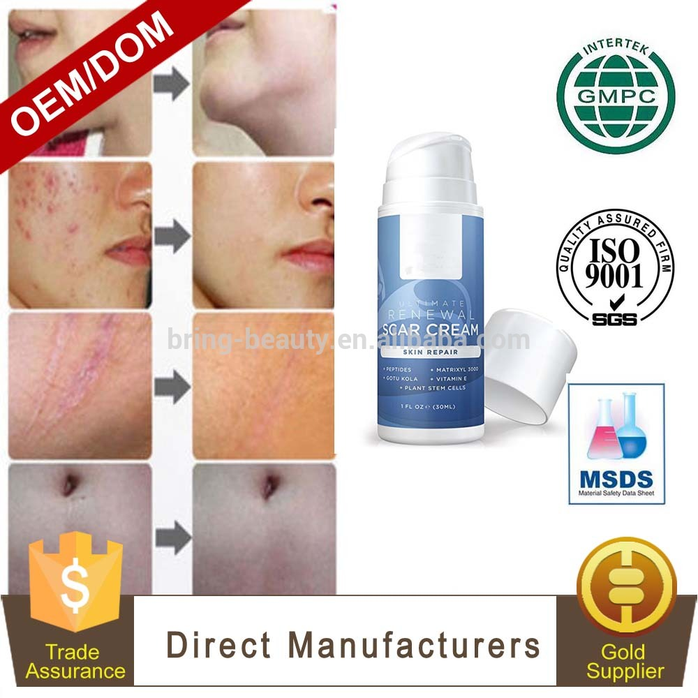Private Label High Quality Best Acne Scar Removal Cream Buy