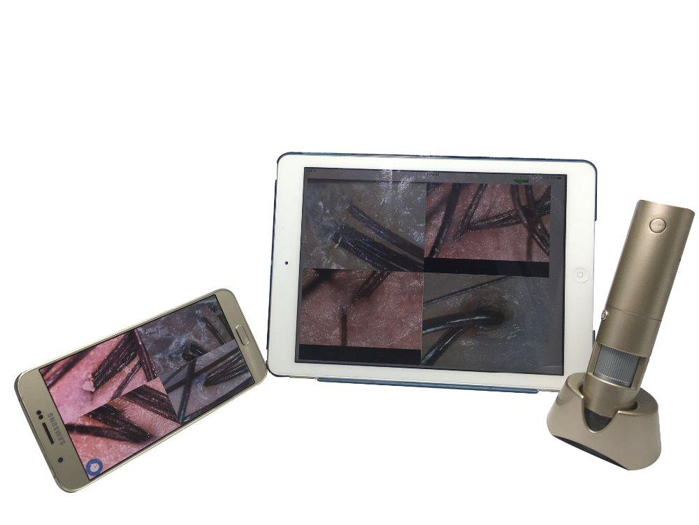 Wireless Connection Smartphone Tablet HD 3.MP Zoom 50X 200X Micro Skin Camera Auto Skin Analyzer Dermatoscope