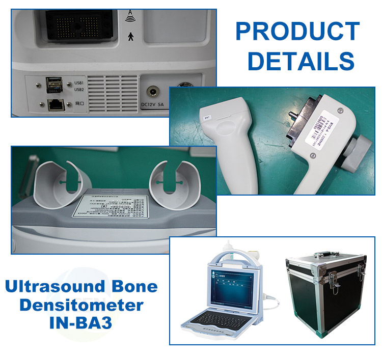 IN-BA3 Portable Laptop Digital Automatic Ultrasound Bone Densitometer