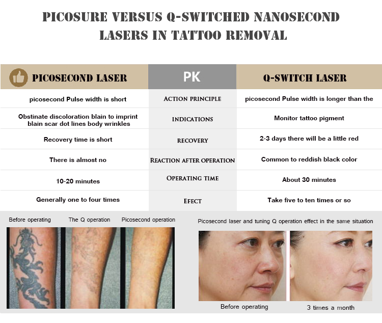 New machine Picosecond laser 755nm PicoSure for Facial Rejuvenation with focus lens array