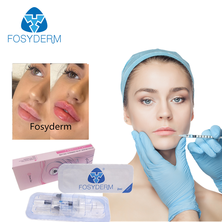 Alibaba.com / Fosyderm 2ml Lip Fillers Hyaluronic Acid Injection Dermal Injectable Fillers