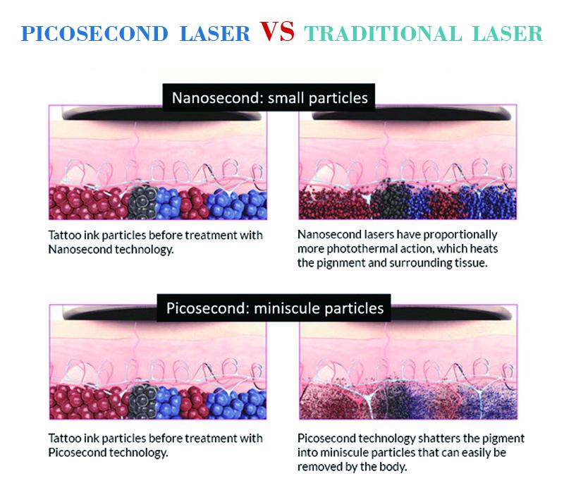 picosecond laser.jpg