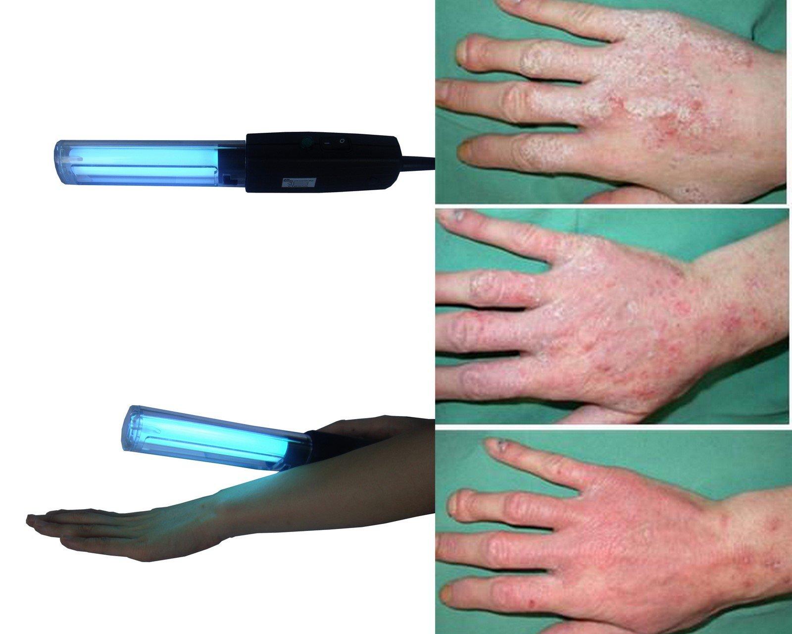 Poche UVB lampe pour VITILIGO-PSORIASIS photothérapie