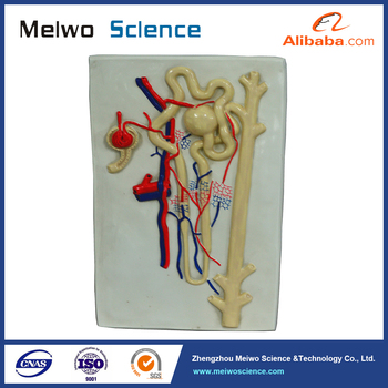 Expansion human anatomy model of the kidney 3 parts for school expansion human anatomy model of the kidney 3 parts for school education ccuart Choice Image