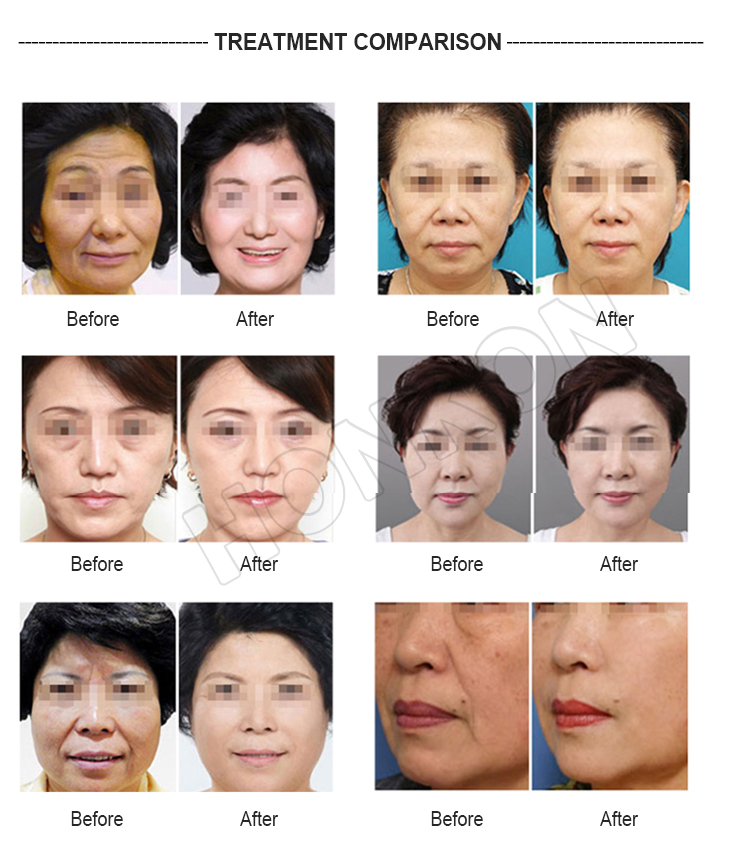 The Best Choice Honkon Ulove-01 Hifu Face And Neck Lift Machine - Buy Face  Lift Machine,Neck Lift Machine,Face And Neck Lift Machine Product on