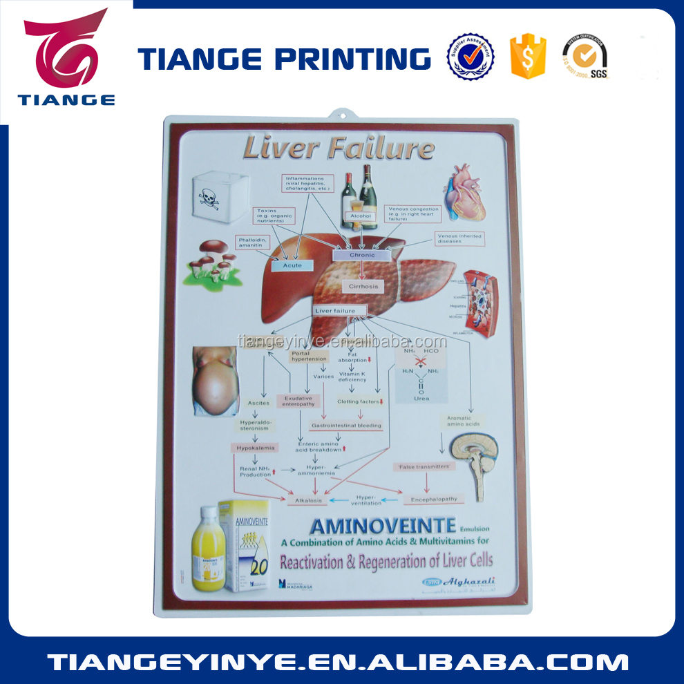 Liver Failure 3D Medical Chart