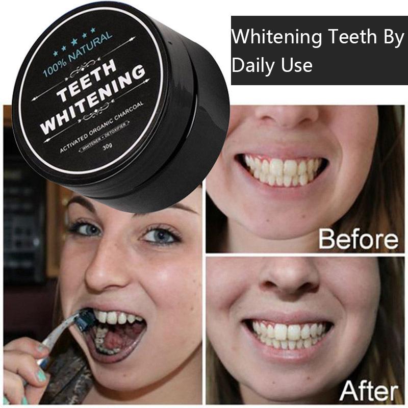 Vendita calda sbiancamento dei denti kit di casa comprendono olio di cocco di trazione e guscio di noce di cocco in polvere