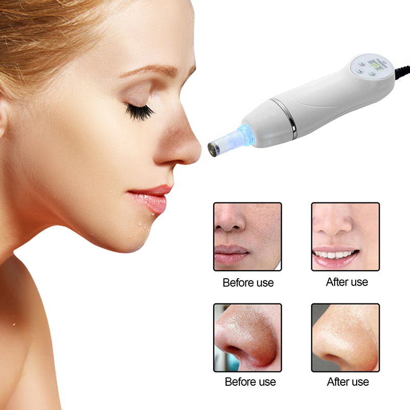 portable diamond microdermabrasion tips/diamond microdermabrasion peel machine hot sale