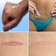 Best adhesive medical silicone gel sheet for scar treatment
