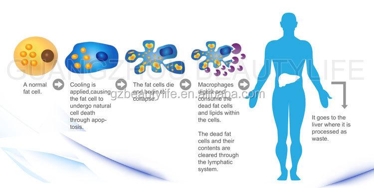最高 Cryolipolysis 脂肪凍結痩身クールボディ整形機