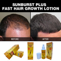 Sunburst Plus Hair Growth Lotion NEW UPGRADE 100ml fast hair growth products anti hair loss 100% genuine