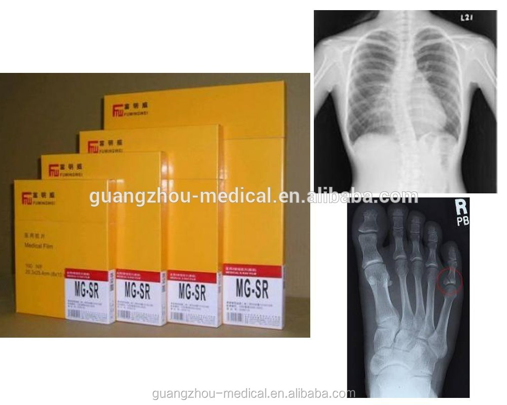 digital film medical, thermal x-ray film, film xray