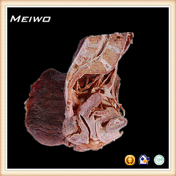 Median Sagittal Plane Of Female Pelvic Cavity Organs Human Anatomy ...