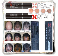 Best anti hair loss product REAL PLUS hair back spray fast promote hair growth