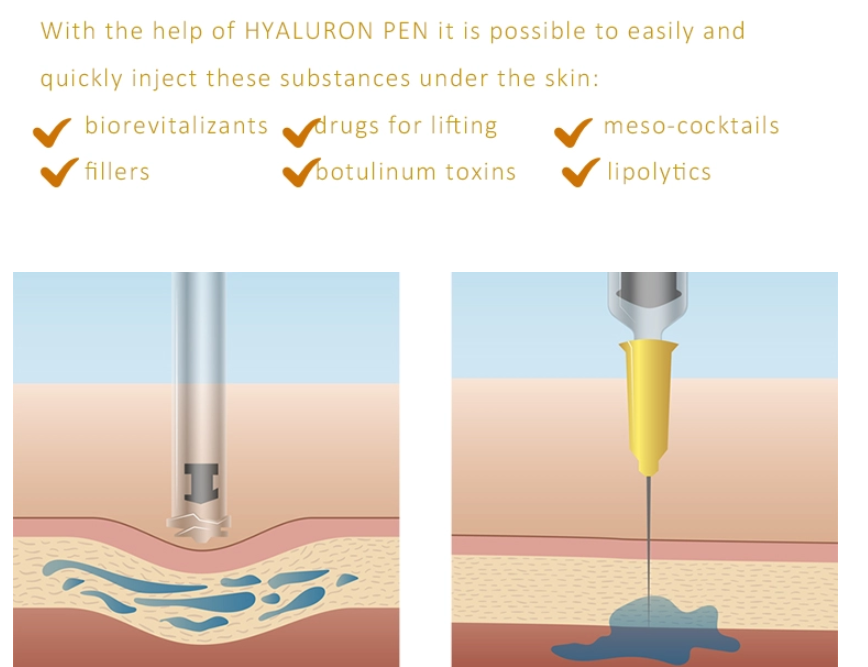 No needle adjustable hyaluronic acid injection pen for lip filling