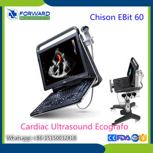 18MHz high frequency laptop color doppler diagnostic system Chison EBit 60 CW doppler ultrasound