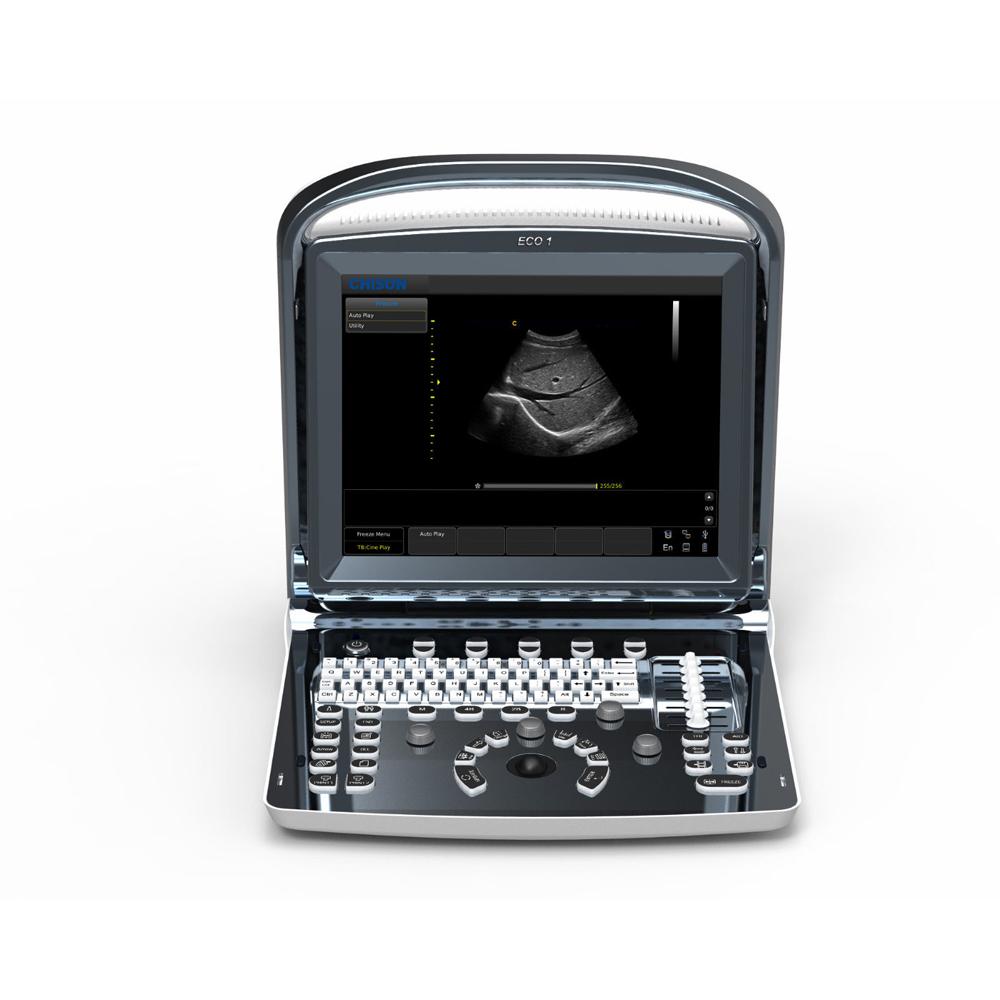 Chison ECO1 Draagbare Ultrasound Machine Voor Zwangerschap