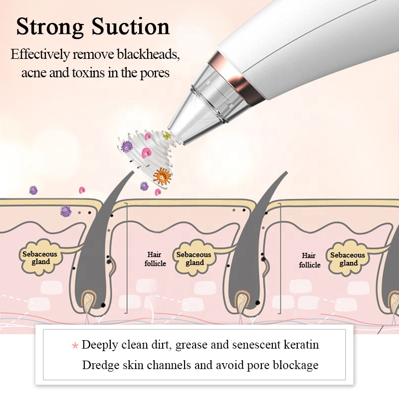 Portable Electric Rechargeable Face Grease Blackhead Removal Instrument Pore Vacuum Blackhead Remover