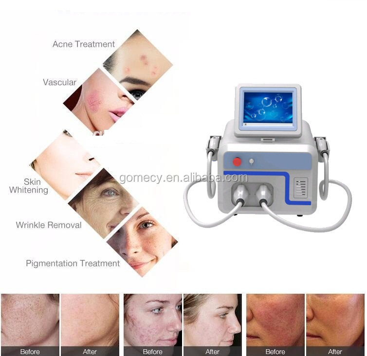 GOMECY Photo Rejuvenation delivers intense pulsed light with rapid pulses of light energy to the skin continuously
