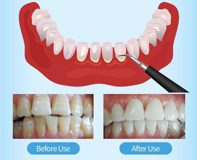 dental scaler -detail-05