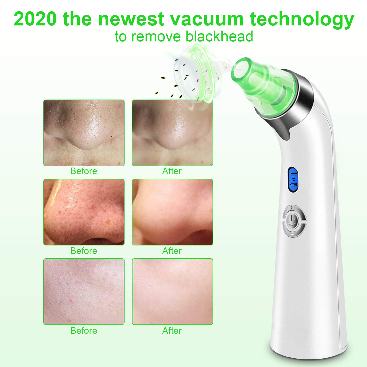 Factory price Amazon hot facial pore deep Cleaner blackhead removerNose cleaning black head remover, blackhead remover vacuum