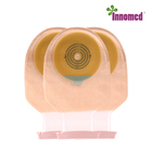 Bag Stoma Care Bags Ileostomy Ostomy Bag Colonoscopy Stoma Care Supplies Type Irrigation Reversing Changing A Change High Output Colostomy Bags