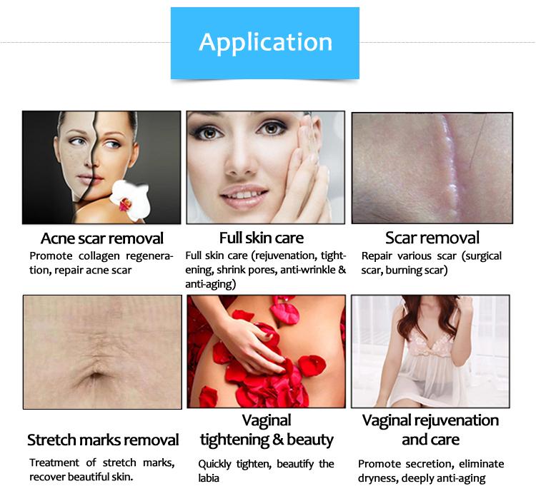 לייזר רפואי ציוד עור טיפול 10600 ננומטר השבר CO2 לייזר SM10600CCB