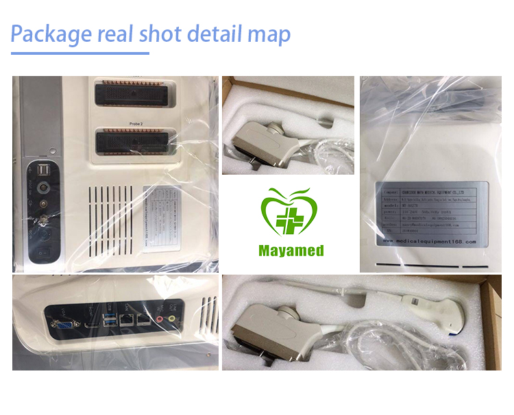 Image review & storage fully digital laptop ultrasound machine color doppler scanner device
