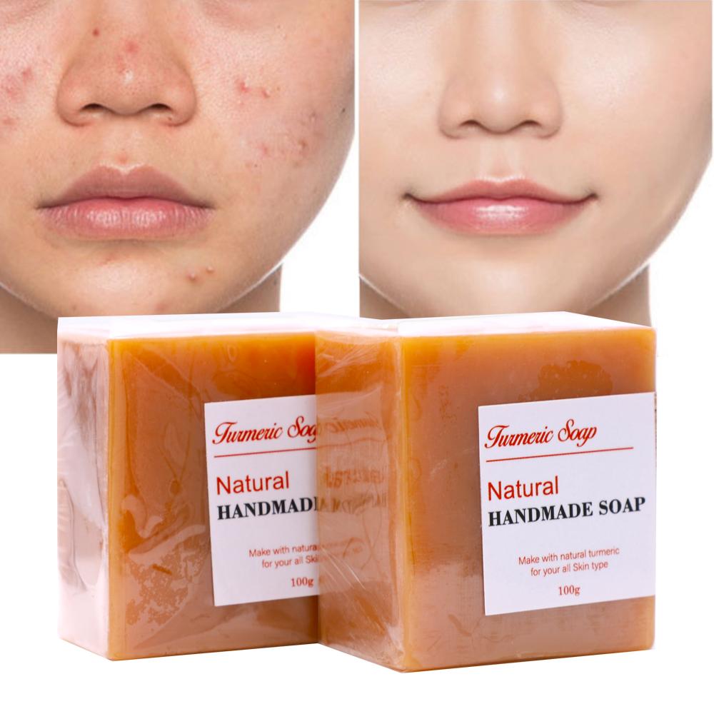 Soap Supplier Hotel 100% Natural Organic Beauty Skin Whitening Face Toilet Tumeric Soap