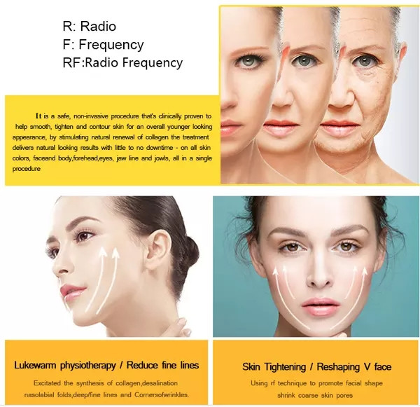 Personal daily care Korea Good effect RF facial face lift wrinkle removal portable mini eye neck lift home use beauty equipment