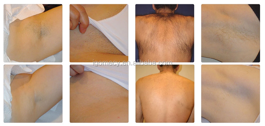 hair removal result