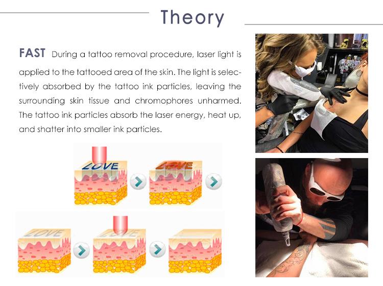 CE Medico CE Approvato Q Switched Nd Yag Laser Macchina di Rimozione Del Tatuaggio Doppio Aste 2000mj