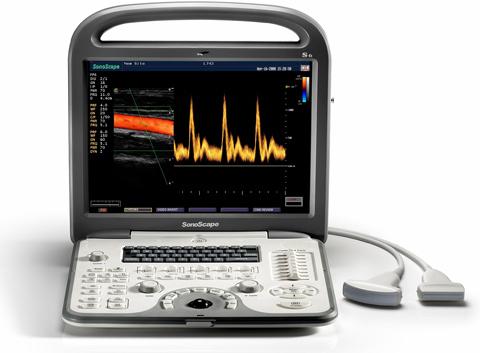 Hot Sell Sonoscape s6 Medical Hospital Doppler Ultrasound Equipment