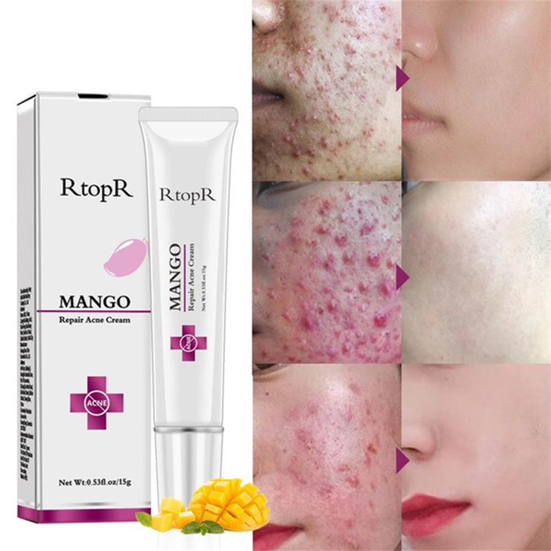 RtopR Mango Repair Acne <strong>Cream</strong> Anti Spots Acne Treatment Scar Blackhead <strong>Cream</strong> Shrink Pores Whitening Moisturizing Face Skin Care