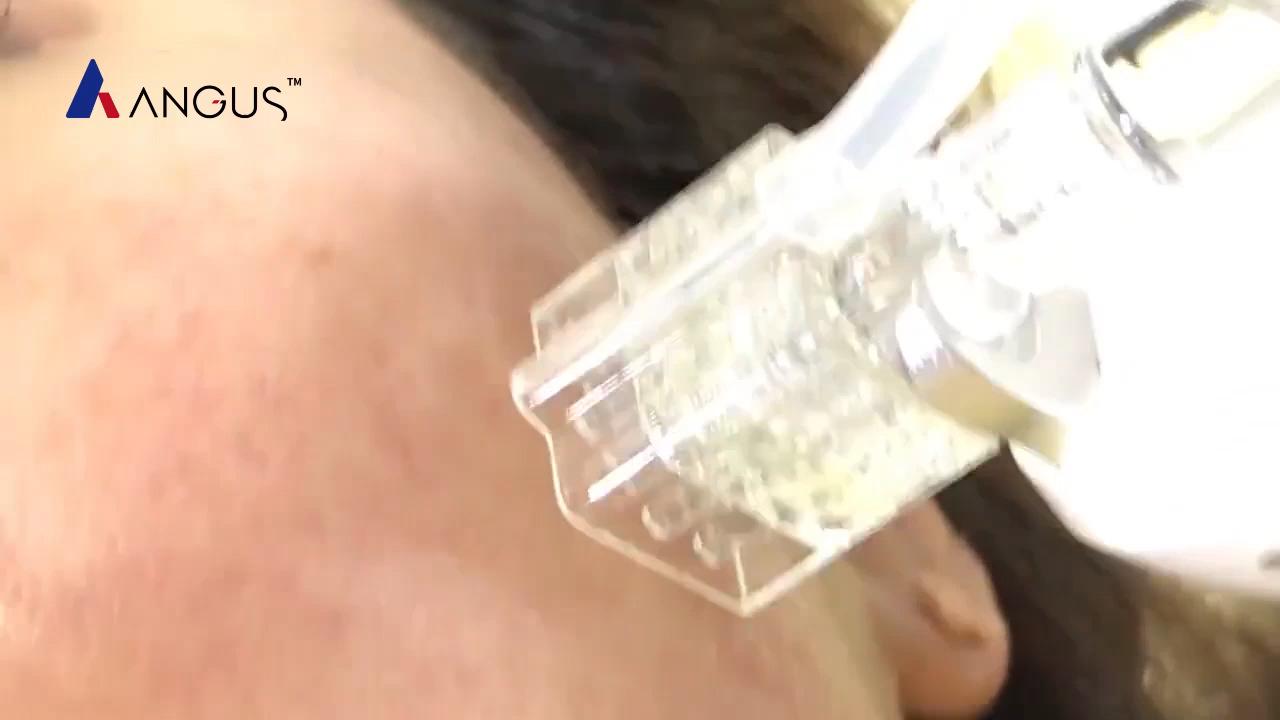नवीनतम महत्वपूर्ण इंजेक्टर पानी वैक्यूम microneedling mesotherapy बंदूक सुई