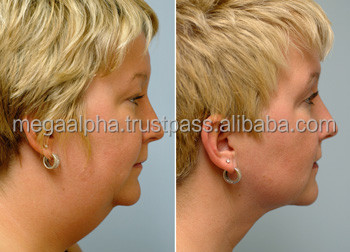 Lipolytic Solutions & Cellulite Tratement For Face & Body ...