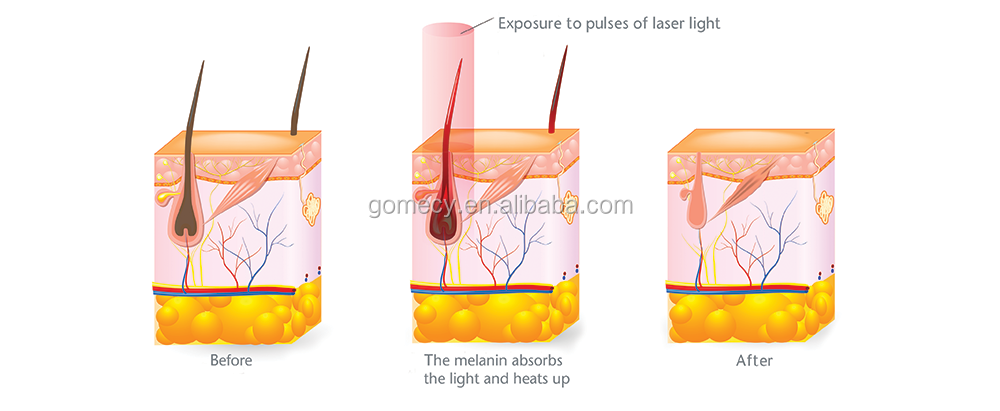 ipl skin rejuvenation e light ipl rf system machine home.png