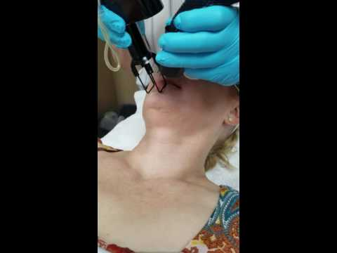Micro-ablative Co2 Laser Resurfacing