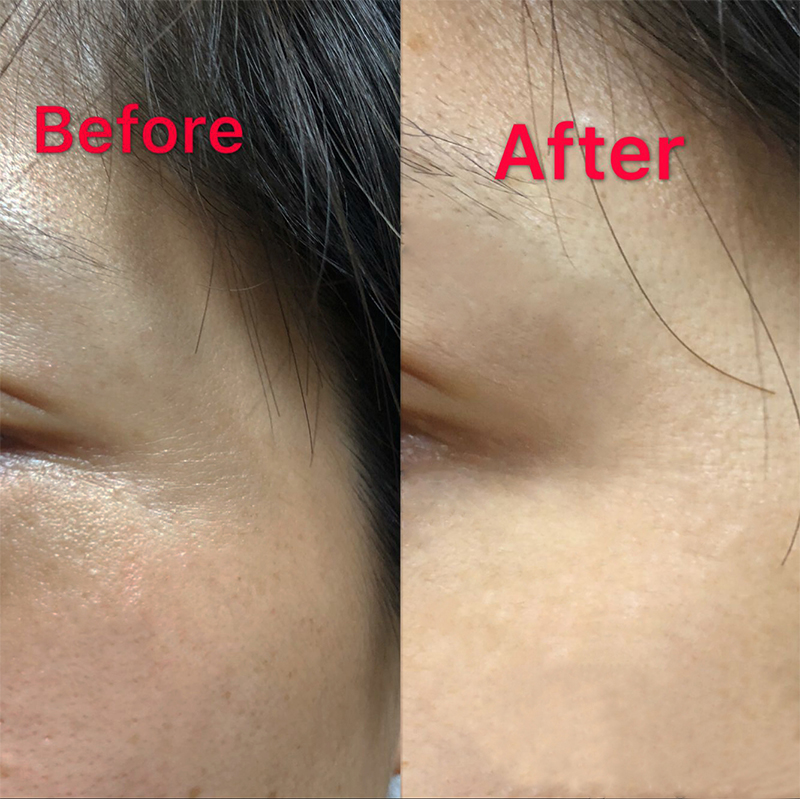 Private Label Anti Aging Anti Wrinkles Eye Cream Retinol Eye Gel