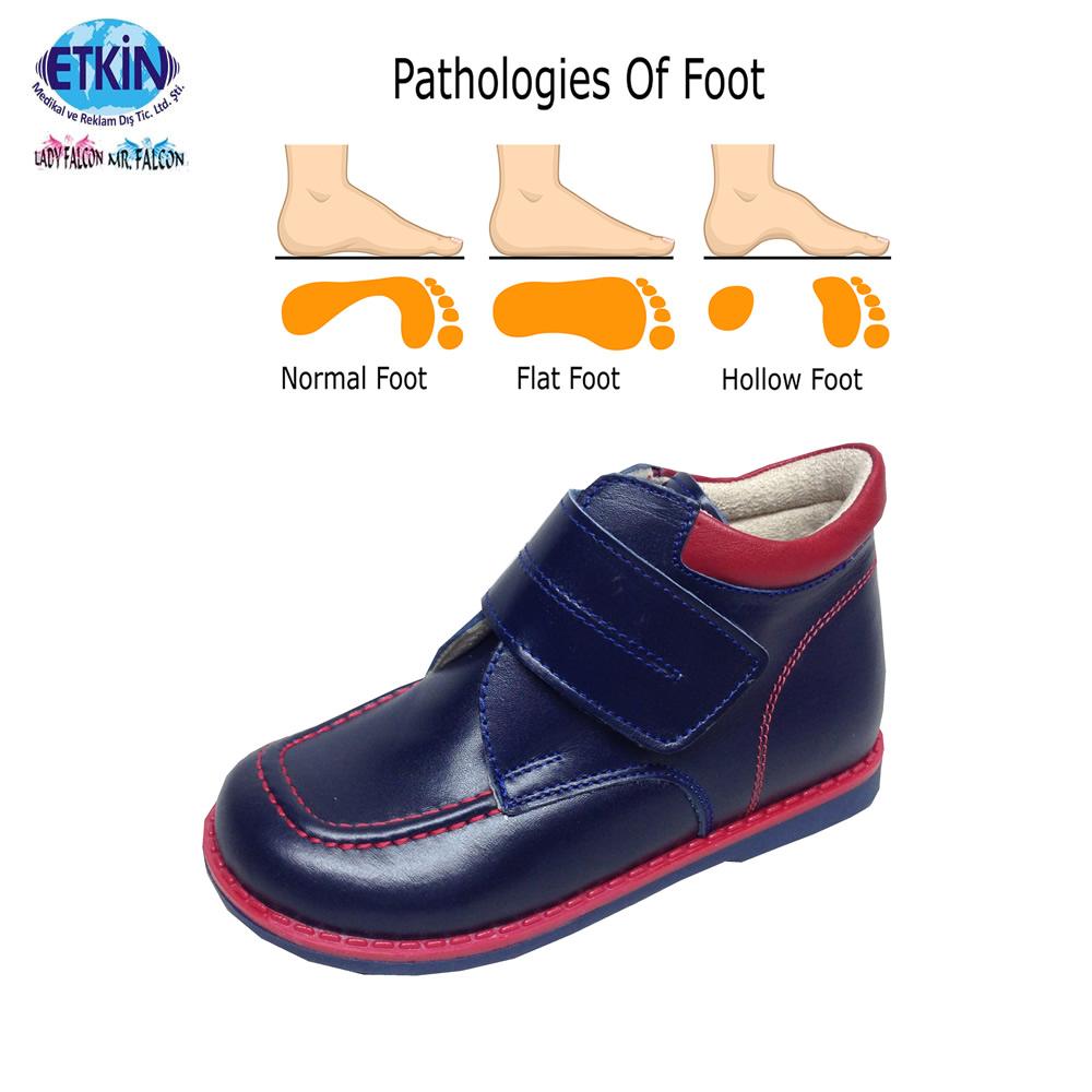 Hot Selling Flat Feet Shoes,Sandals