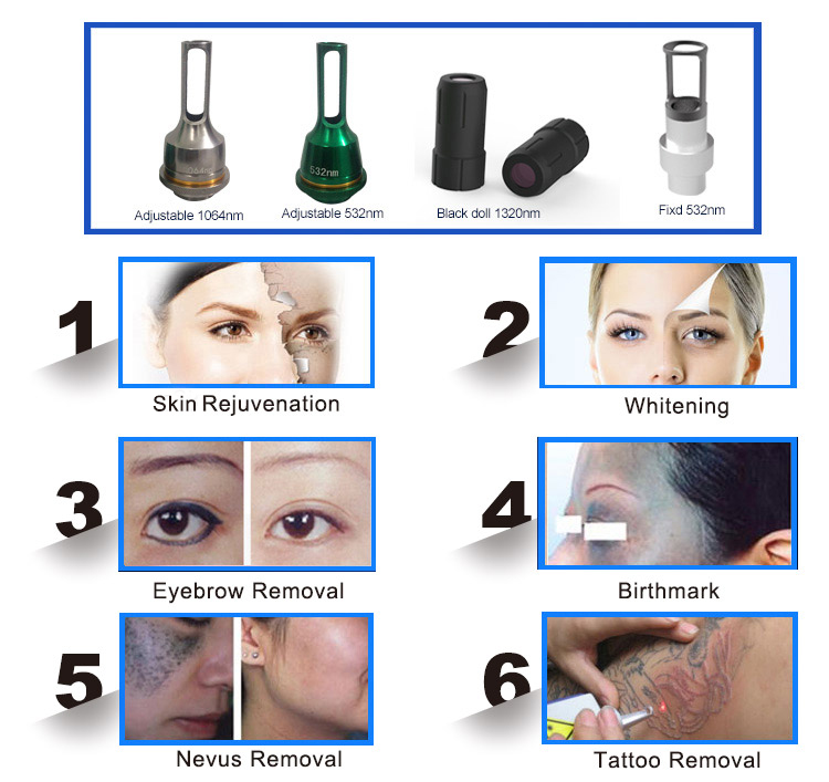 Portable q interruttore prezzo nd yag laser tattoo rimozione del pigmento macchine migliori risultati
