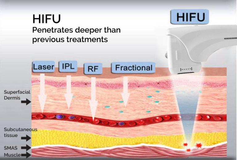 4d 3d hifu 11 linhas preço de atacado máquina korea hifu para apertar a pele