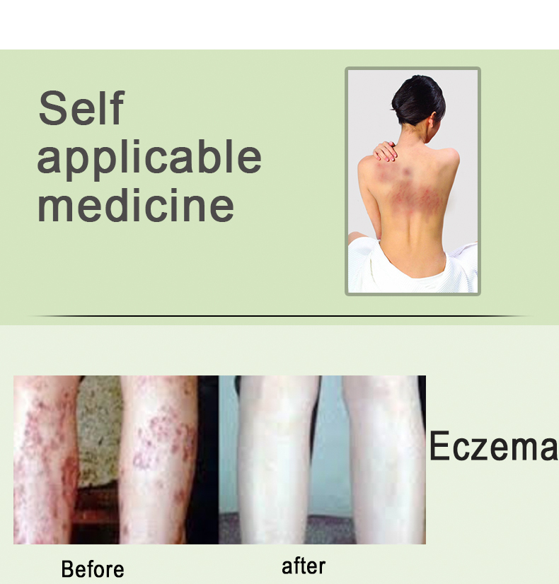 Super Eczema Cream For All Skin Types - Buy Eczema Cream,Skin Problems,Skin  Infection Product on Alibaba com
